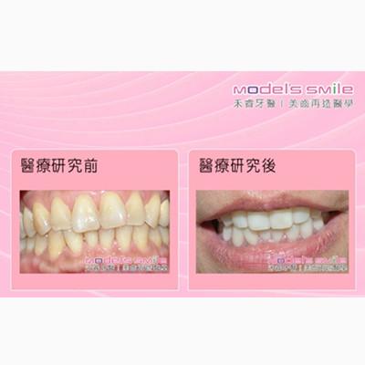 【台北牙醫 星鑽超薄瓷牙貼片案例】汙垢影響衛生觀感 貼片美白迅速效果佳