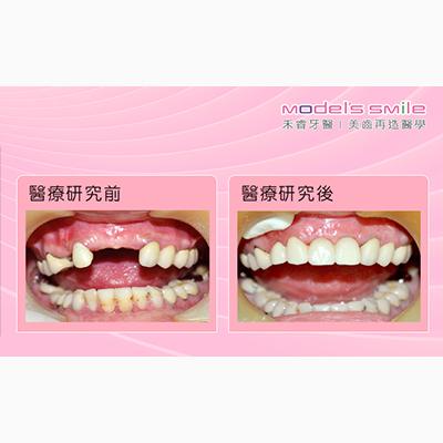 【台北牙醫 人工植牙/即拔即種案例】快速植牙即拔即種 妙齡女恢復開心笑容