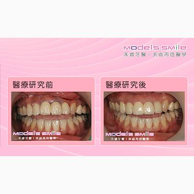 舒眠植牙案例-金屬瓷牙惹禍,舒眠植牙輕鬆治好牙齦發黑紅腫
