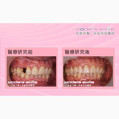 【台北牙醫 人工植牙案例】3D電腦導航無痛雷射 犬齒植牙逼真完善
