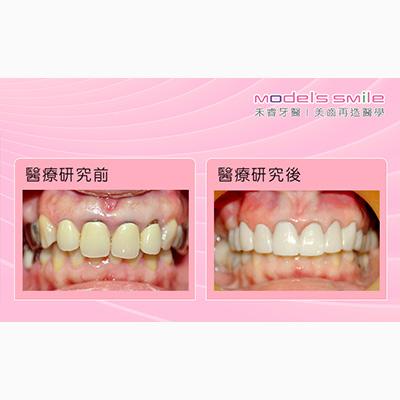 【台北牙醫 微創牙周治療合併植牙】不當植牙險造成骨萎縮 重建術後咬合良好