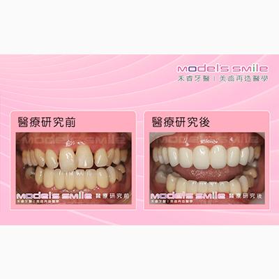 牙周病接受全瓷冠治療案例-低疼痛雷射殺牙周病菌,小吃老闆娘笑容更美麗