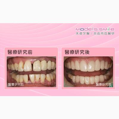 牙周病接受全瓷冠治療案例-牙齦黑牙縫大,水波雷射全瓷冠還一口美牙