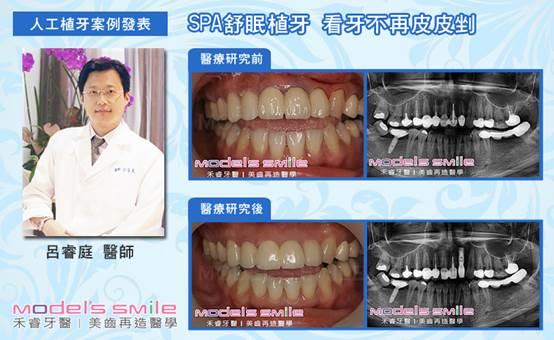 植牙|禾睿牙醫|美齒再造醫學