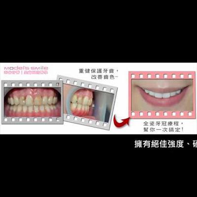 【禾睿牙醫/全瓷牙冠/瓷牙貼片 治療實例】 解決蛀牙與齒色不均,「全瓷系列療程」幫你一次搞定!