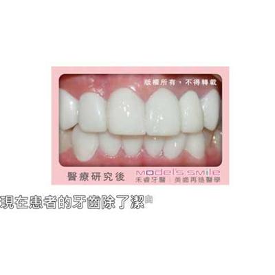 【禾睿牙醫/全瓷貼片實例】 年紀增長牙齒黃,別讓牙齒洩漏你的祕密?!